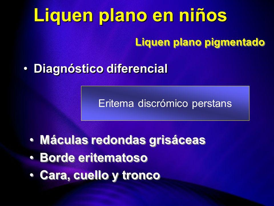 Eritema discrómico perstans