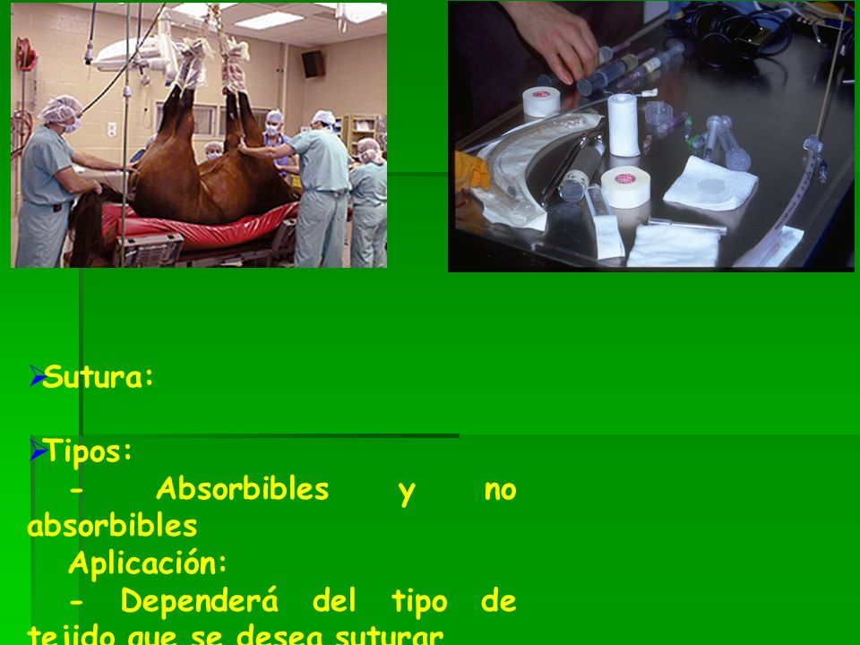 Sutura: Tipos: - Absorbibles y no absorbibles.