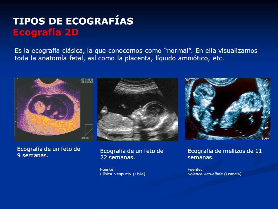 TIPOS DE ECOGRAFÍAS TIPOS DE ECOGRAFÍAS Ecografía 2D