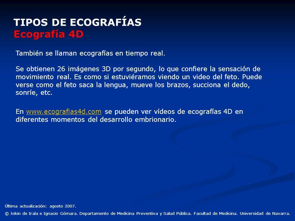 TIPOS DE ECOGRAFÍAS Ecografía 4D