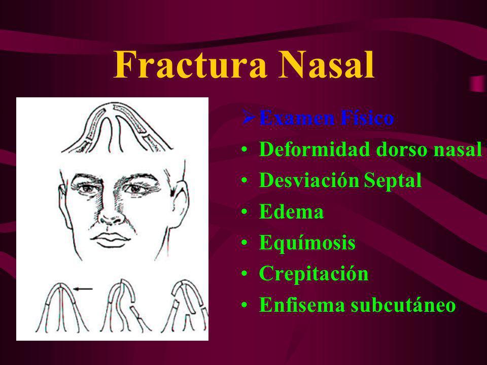 Fractura Nasal Examen Físico Deformidad dorso nasal Desviación Septal