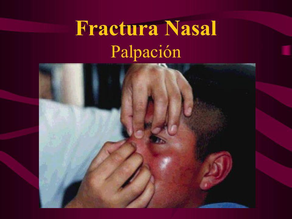 Fractura Nasal Palpación