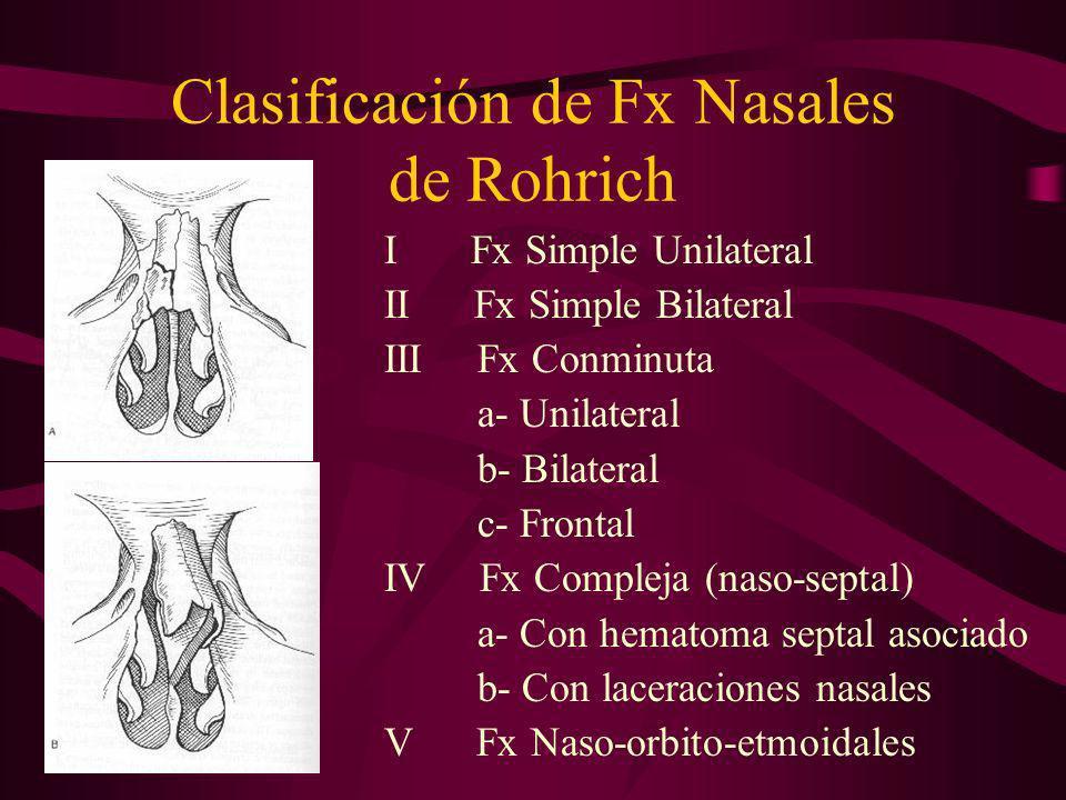 Clasificación de Fx Nasales de Rohrich