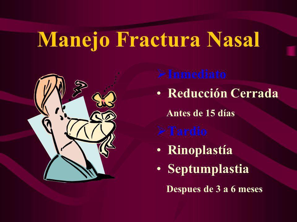 Manejo Fractura Nasal Inmediato Reducción Cerrada Antes de 15 días