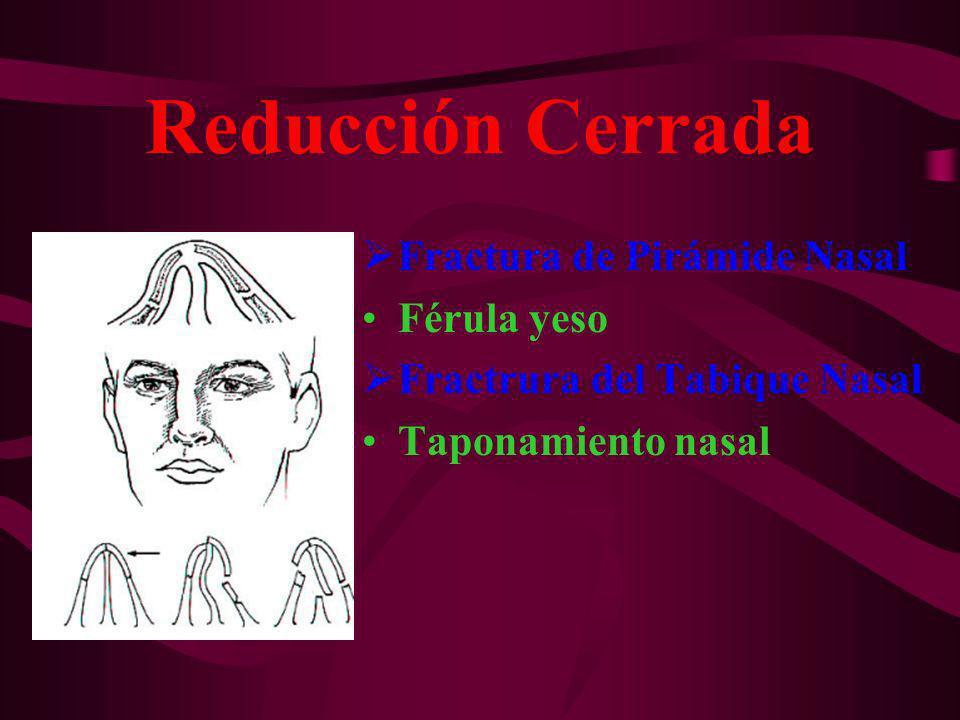 Reducción Cerrada Fractura de Pirámide Nasal Férula yeso