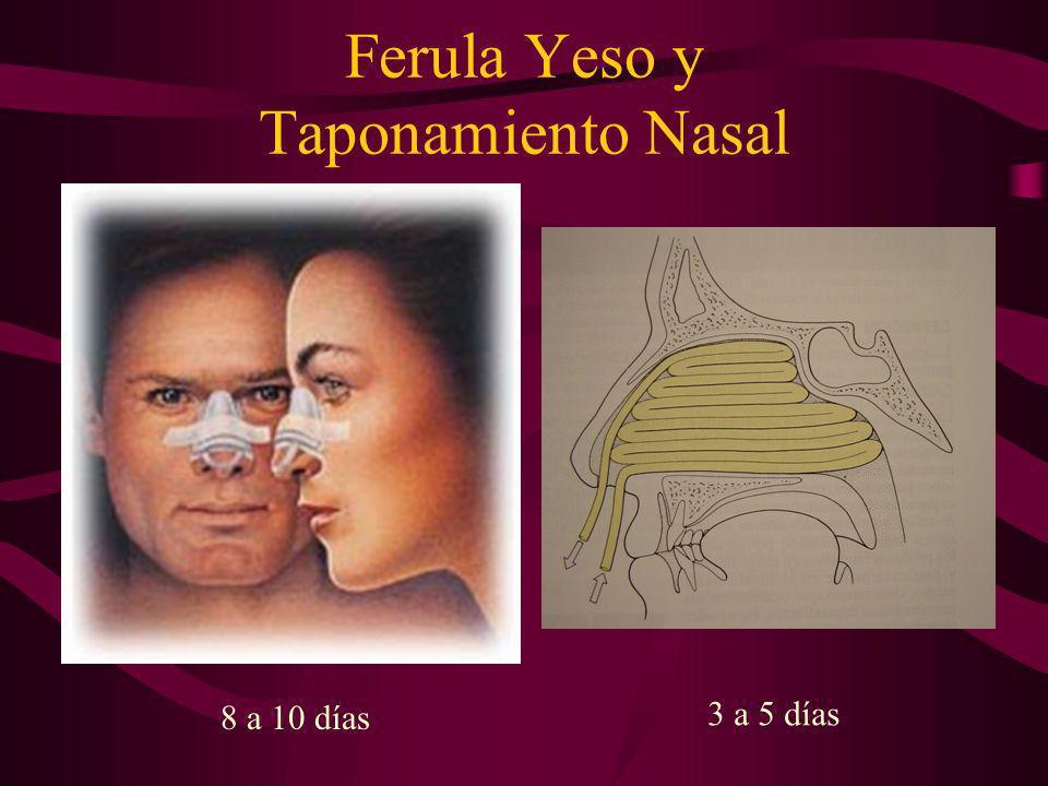 Ferula Yeso y Taponamiento Nasal