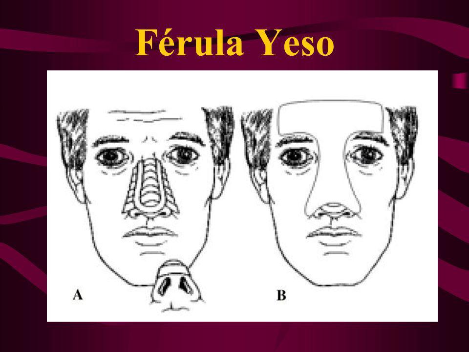 Férula Yeso