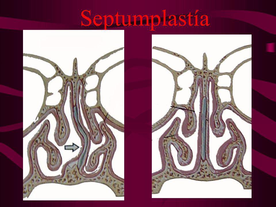 Septumplastía