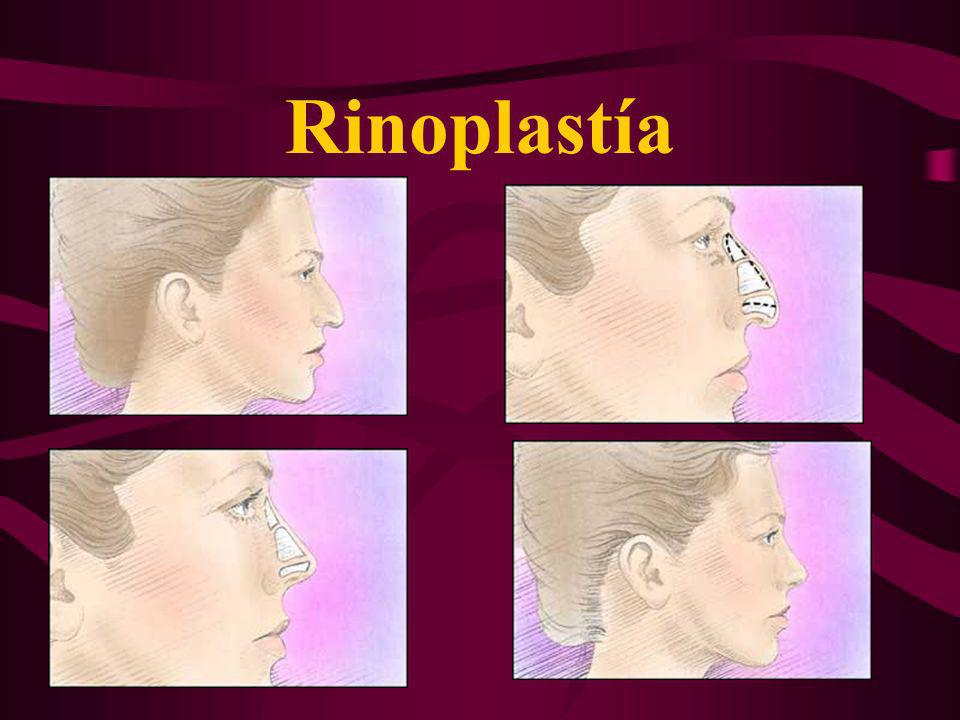 Rinoplastía