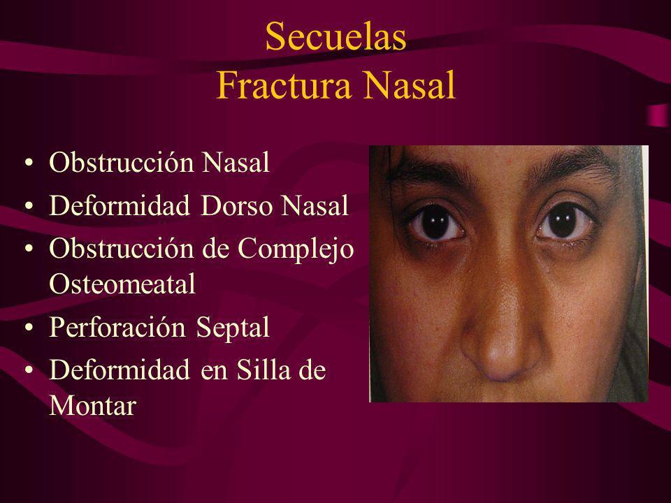 Secuelas Fractura Nasal