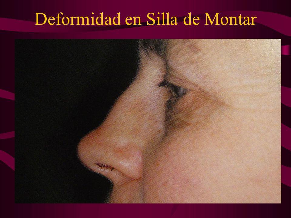 Deformidad en Silla de Montar