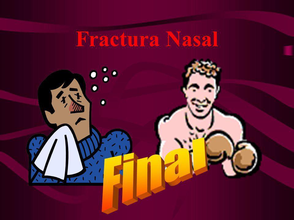 Fractura Nasal Final