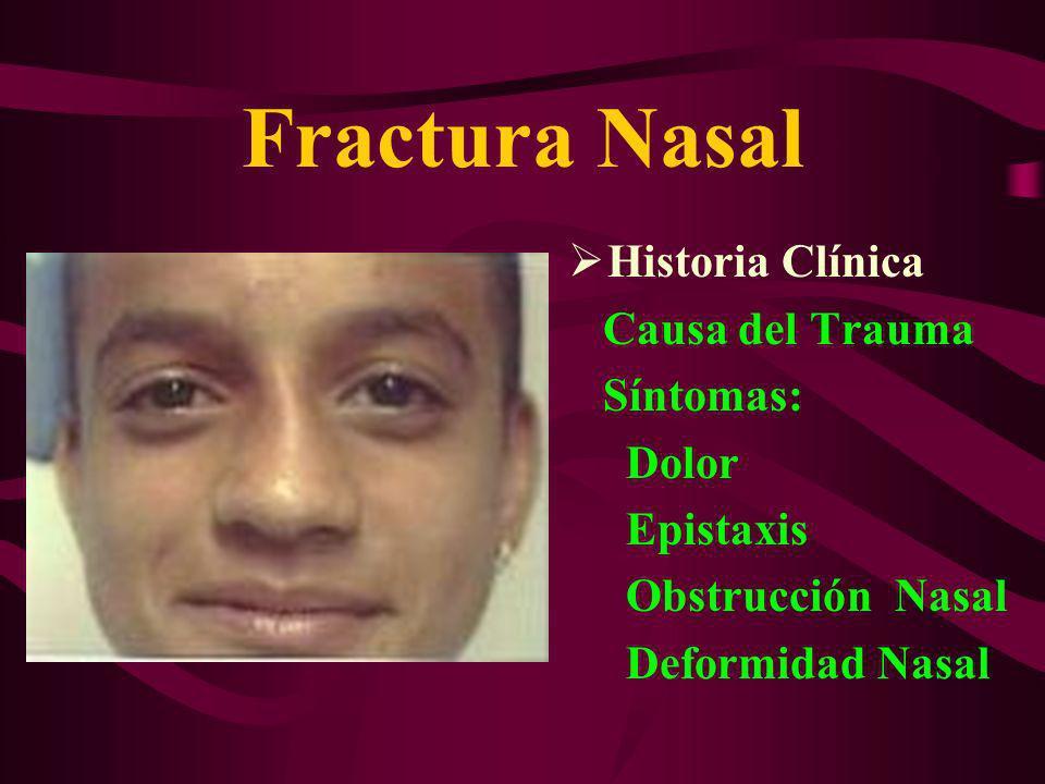 Fractura Nasal Historia Clínica Causa del Trauma Síntomas: Dolor