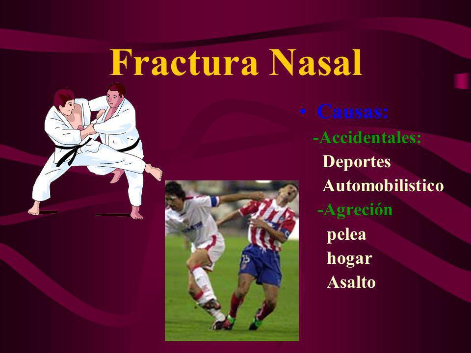 Fractura Nasal Causas: -Accidentales: Deportes Automobilistico