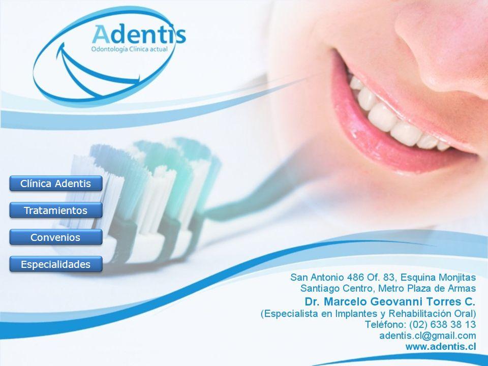 Clínica Adentis Tratamientos Convenios Especialidades