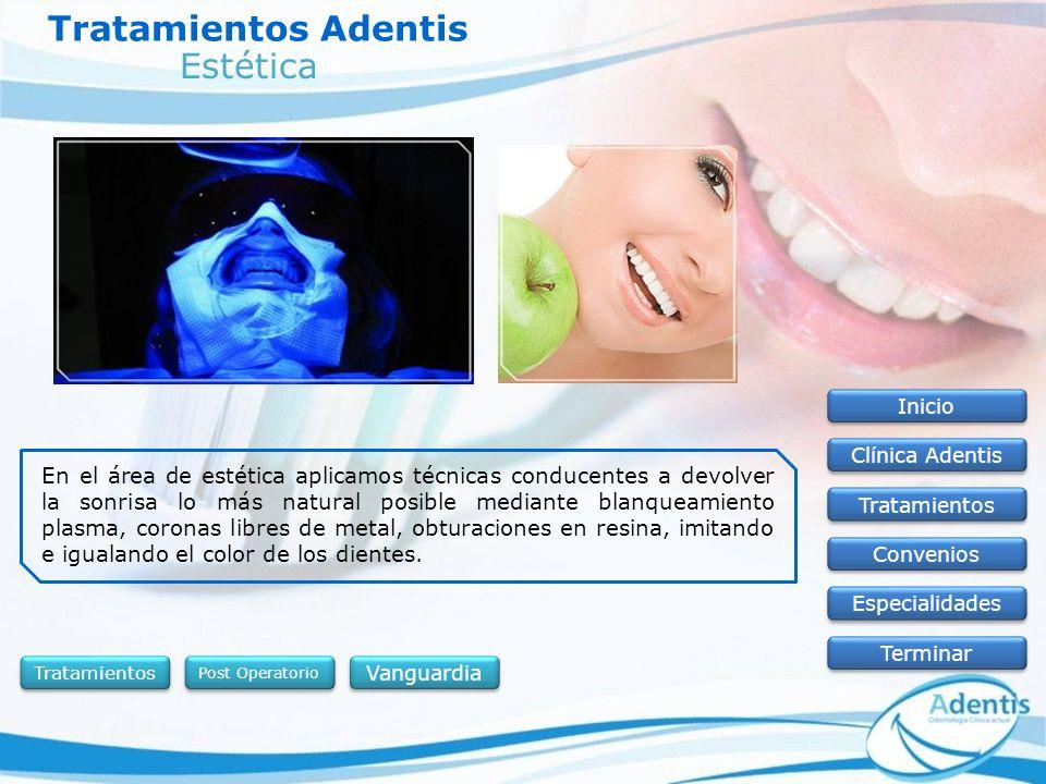 Tratamientos Adentis Estética