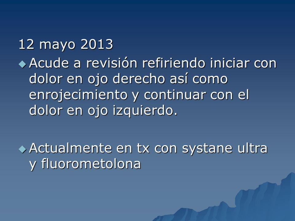 12 mayo 2013 Acude a revisión refiriendo iniciar con dolor en ojo derecho así como enrojecimiento y continuar con el dolor en ojo izquierdo.