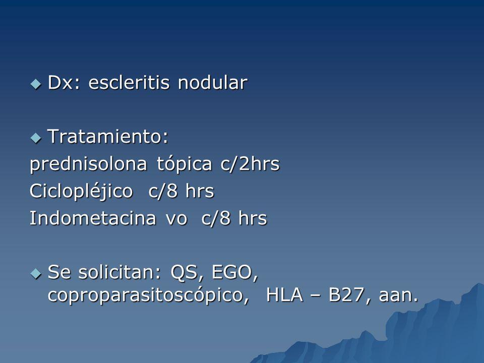 Dx: escleritis nodular