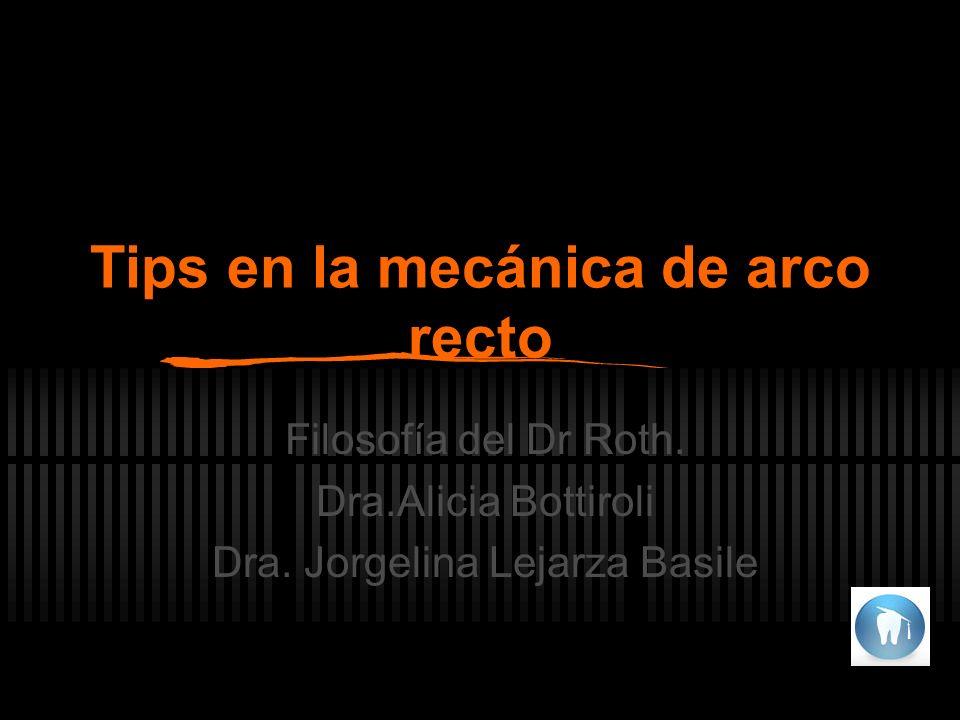 Tips en la mecánica de arco recto