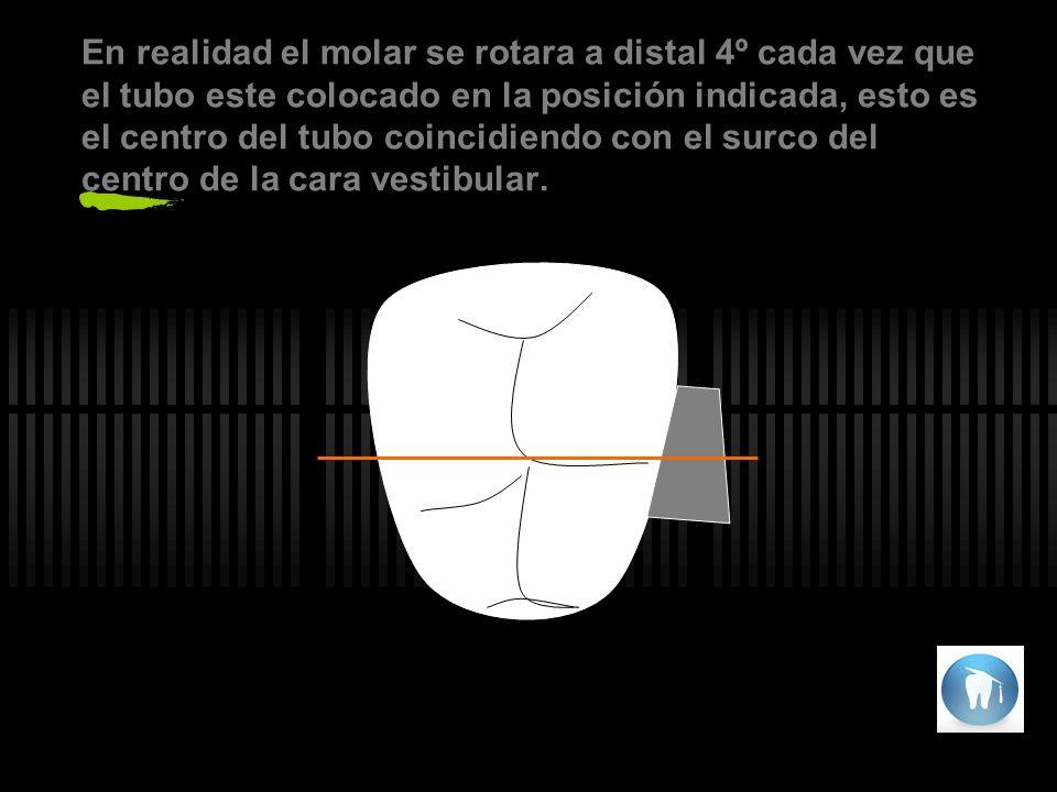 En realidad el molar se rotara a distal 4º cada vez que el tubo este colocado en la posición indicada, esto es el centro del tubo coincidiendo con el surco del centro de la cara vestibular.