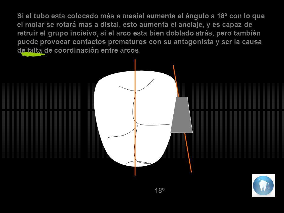 Si el tubo esta colocado más a mesial aumenta el ángulo a 18º con lo que el molar se rotará mas a distal, esto aumenta el anclaje, y es capaz de retruir el grupo incisivo, si el arco esta bien doblado atrás, pero también puede provocar contactos prematuros con su antagonista y ser la causa de falta de coordinación entre arcos