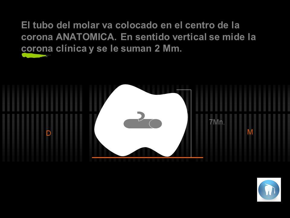 El tubo del molar va colocado en el centro de la corona ANATOMICA