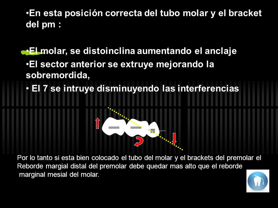 En esta posición correcta del tubo molar y el bracket del pm :