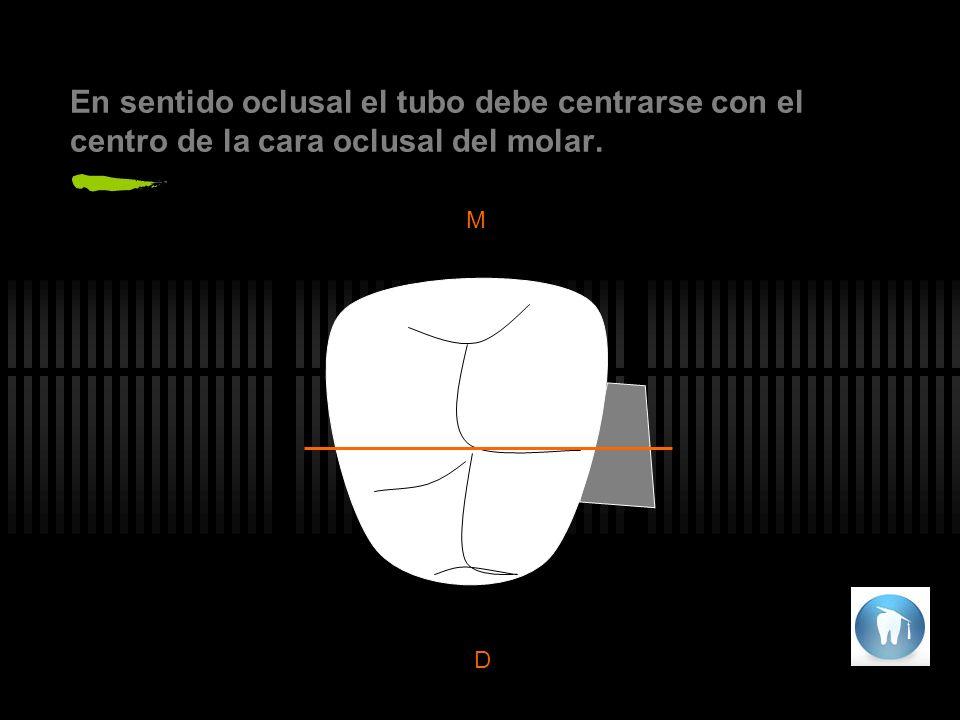 En sentido oclusal el tubo debe centrarse con el centro de la cara oclusal del molar.