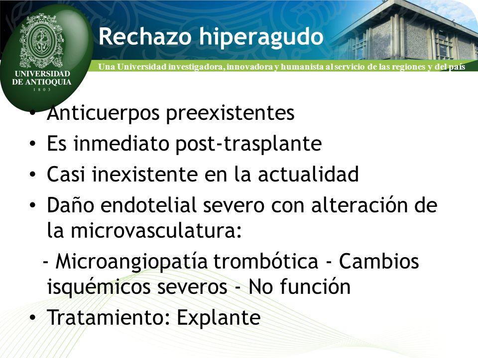 Rechazo hiperagudo Anticuerpos preexistentes