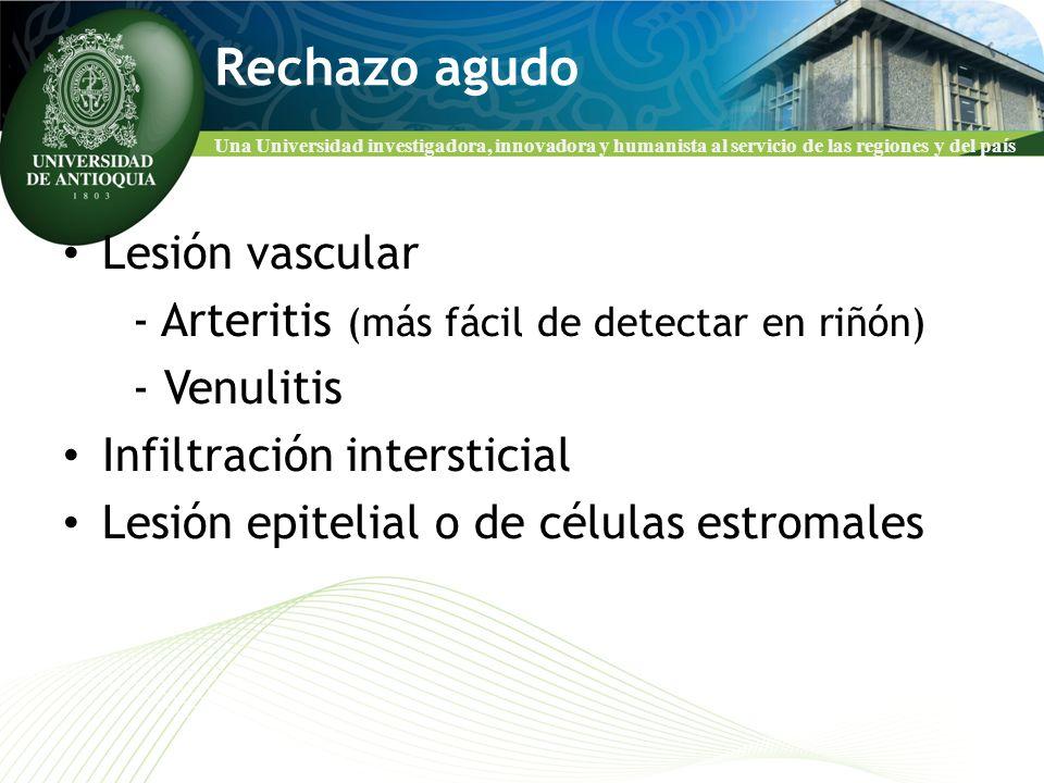 Rechazo agudo Lesión vascular