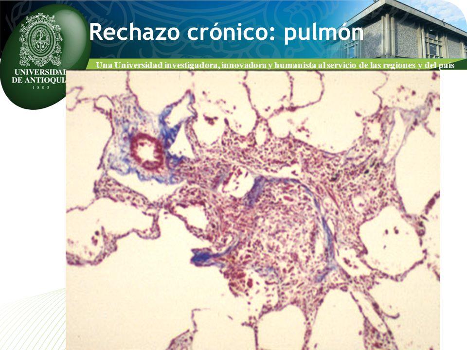 Rechazo crónico: pulmón