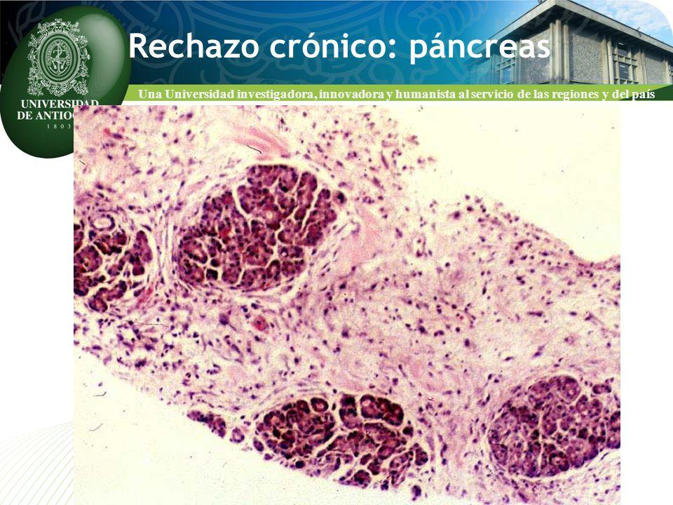 Rechazo crónico: páncreas