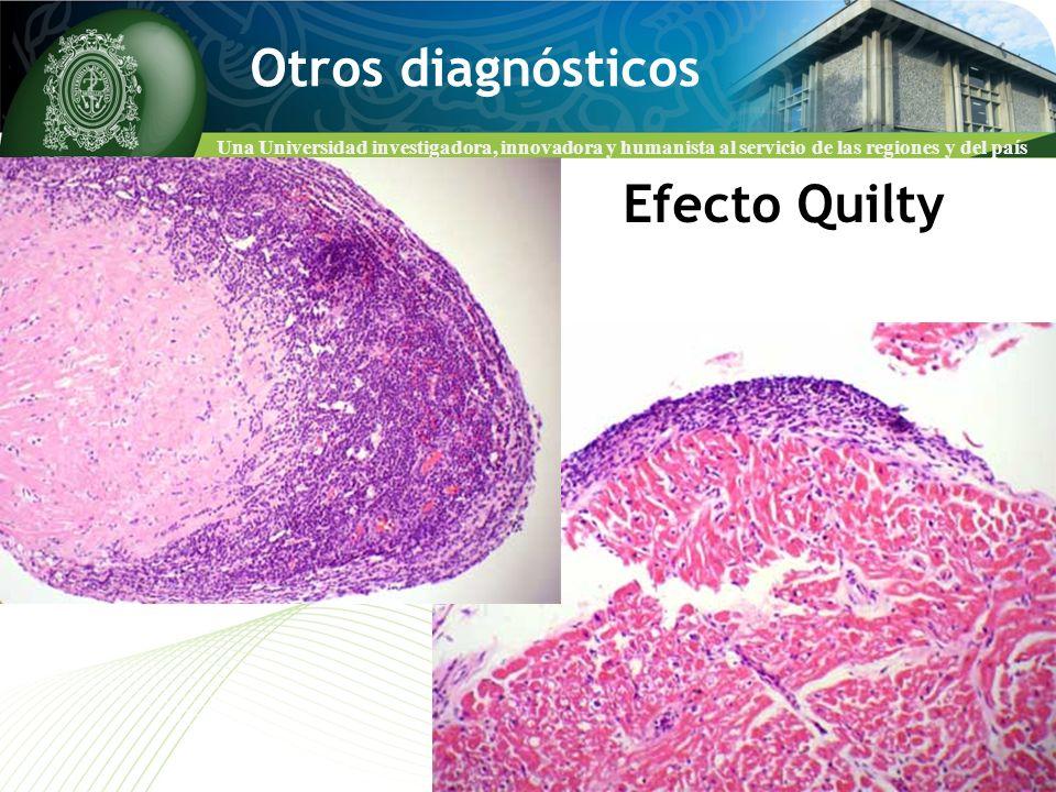 Otros diagnósticos Efecto Quilty