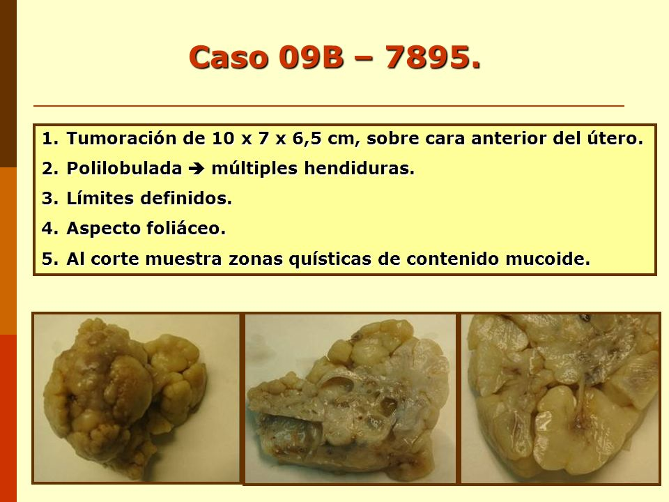 Caso 09B – 7895. Tumoración de 10 x 7 x 6,5 cm, sobre cara anterior del útero. Polilobulada  múltiples hendiduras.