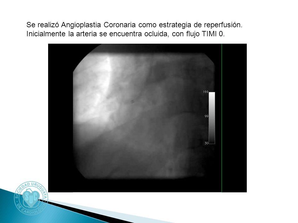 Se realizó Angioplastia Coronaria como estrategia de reperfusión