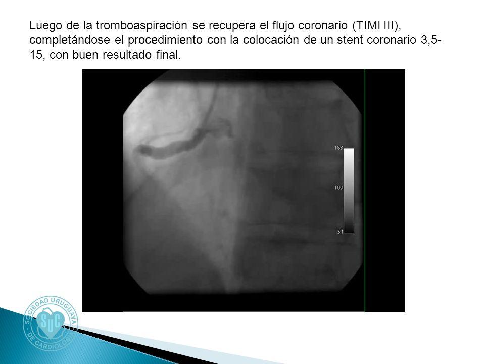 Luego de la tromboaspiración se recupera el flujo coronario (TIMI III), completándose el procedimiento con la colocación de un stent coronario 3,5- 15, con buen resultado final.