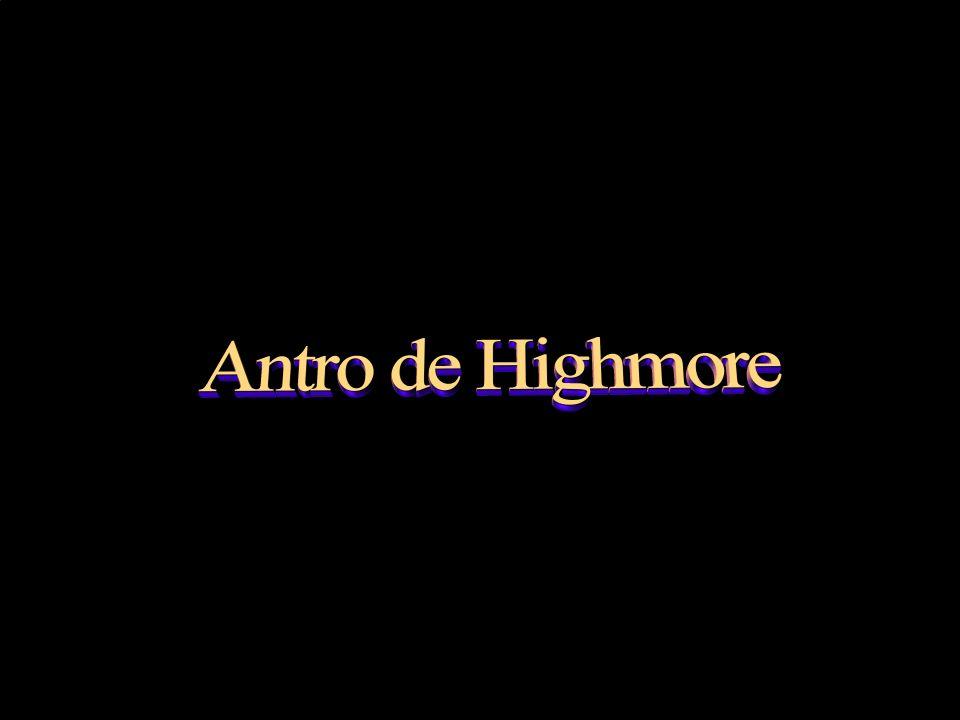 Antro de Highmore