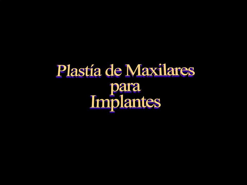 Plastia de maxilares para implantes dentales.