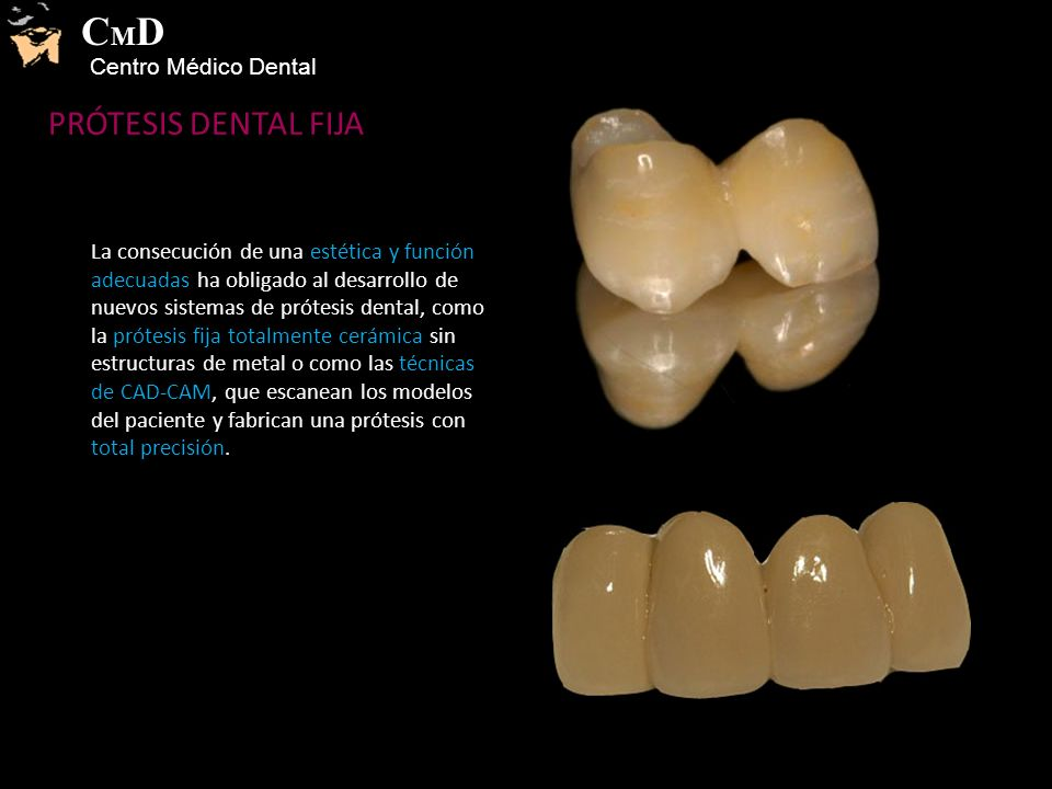 CMD PRÓTESIS DENTAL FIJA Centro Médico Dental
