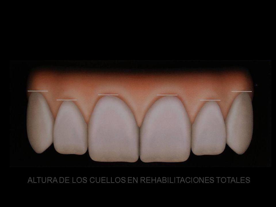 ANÁLISIS GINGIVAL ALTURA DE LOS CUELLOS EN REHABILITACIONES TOTALES