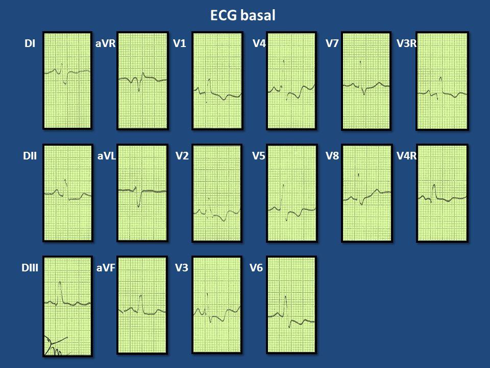 ECG basal DI aVR V1 V4 V7 V3R DII aVL V2 V5 V8 V4R DIII aVF V3 V6