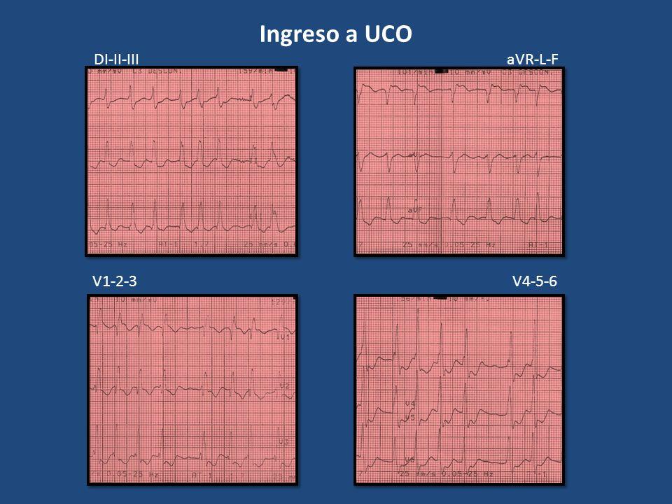 Ingreso a UCO DI-II-III aVR-L-F V1-2-3 V4-5-6