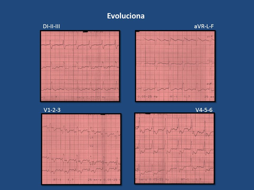 Evoluciona DI-II-III aVR-L-F V1-2-3 V4-5-6