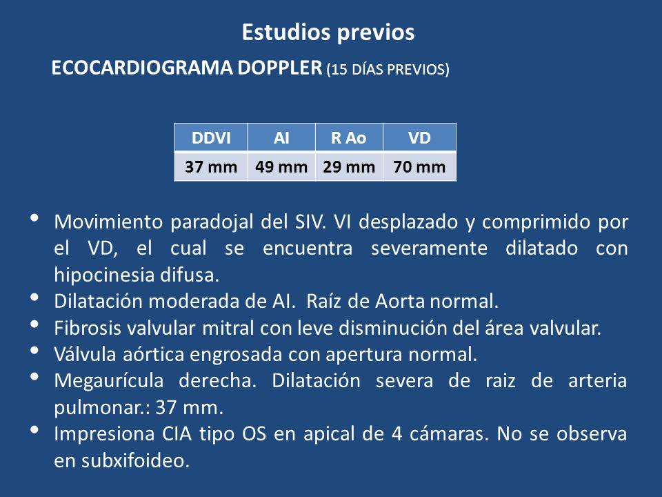Estudios previos ECOCARDIOGRAMA DOPPLER (15 DÍAS PREVIOS)