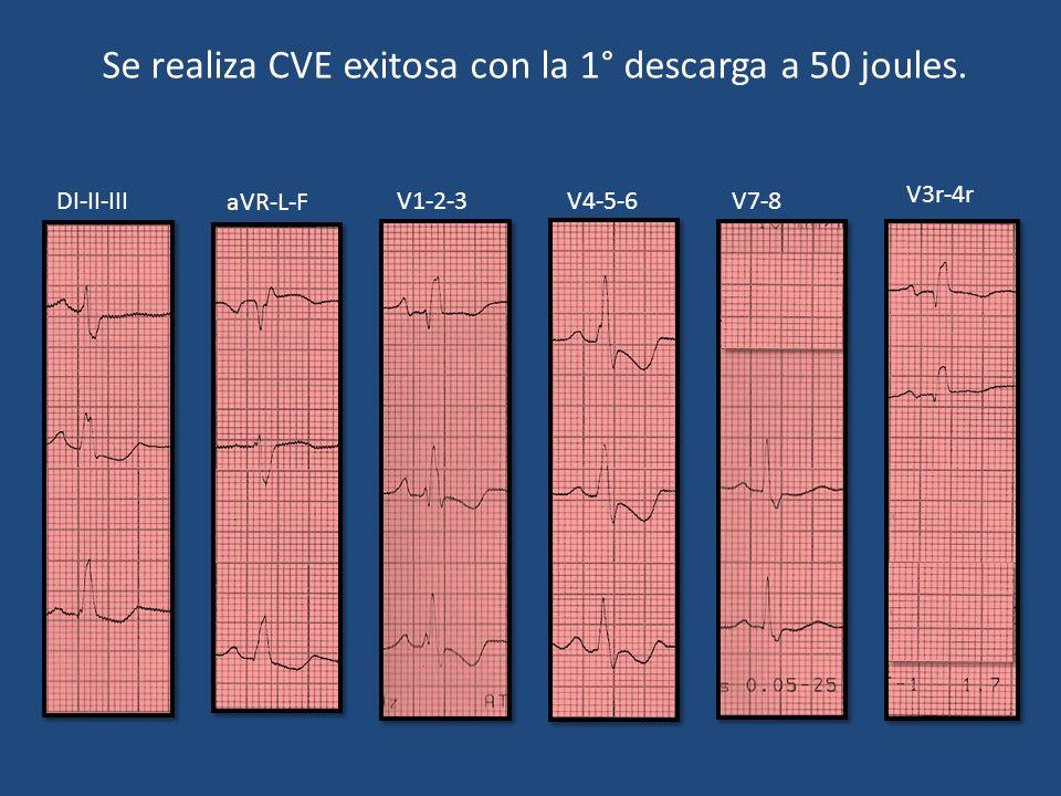 Se realiza CVE exitosa con la 1° descarga a 50 joules.