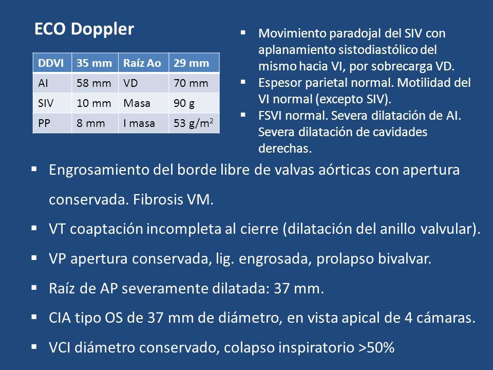 ECO Doppler Movimiento paradojal del SIV con aplanamiento sistodiastólico del mismo hacia VI, por sobrecarga VD.