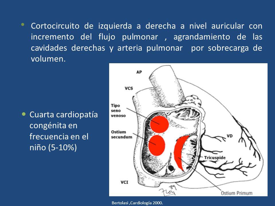 Cuarta cardiopatía congénita en frecuencia en el niño (5-10%)