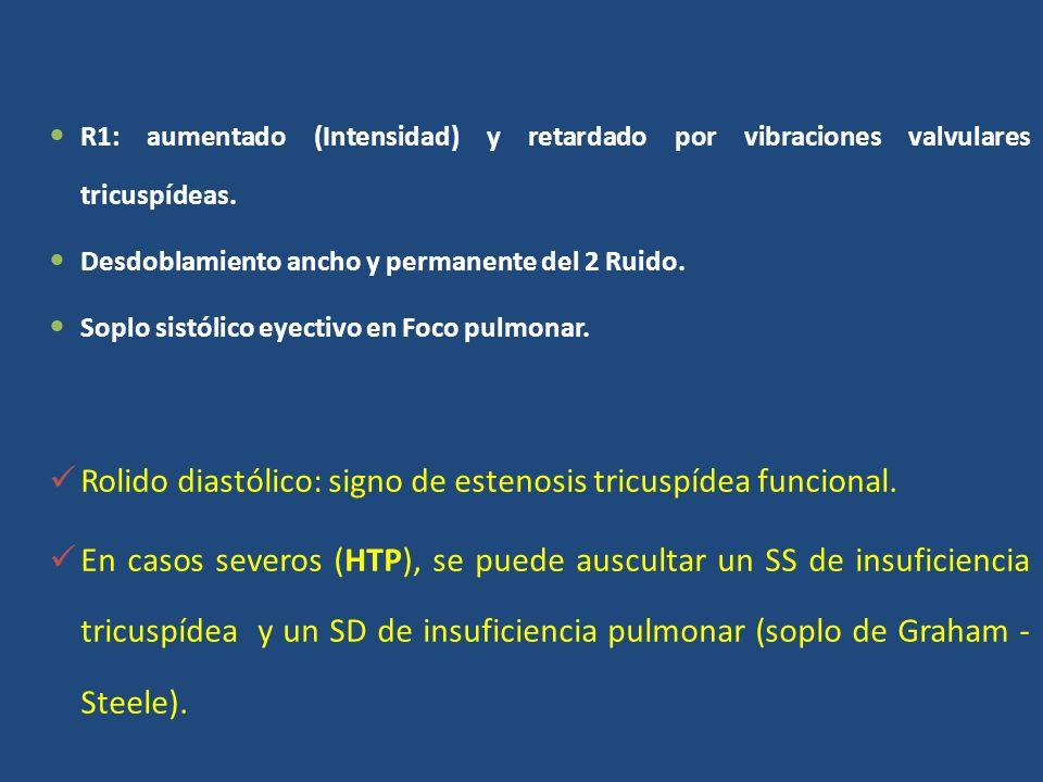 Rolido diastólico: signo de estenosis tricuspídea funcional.