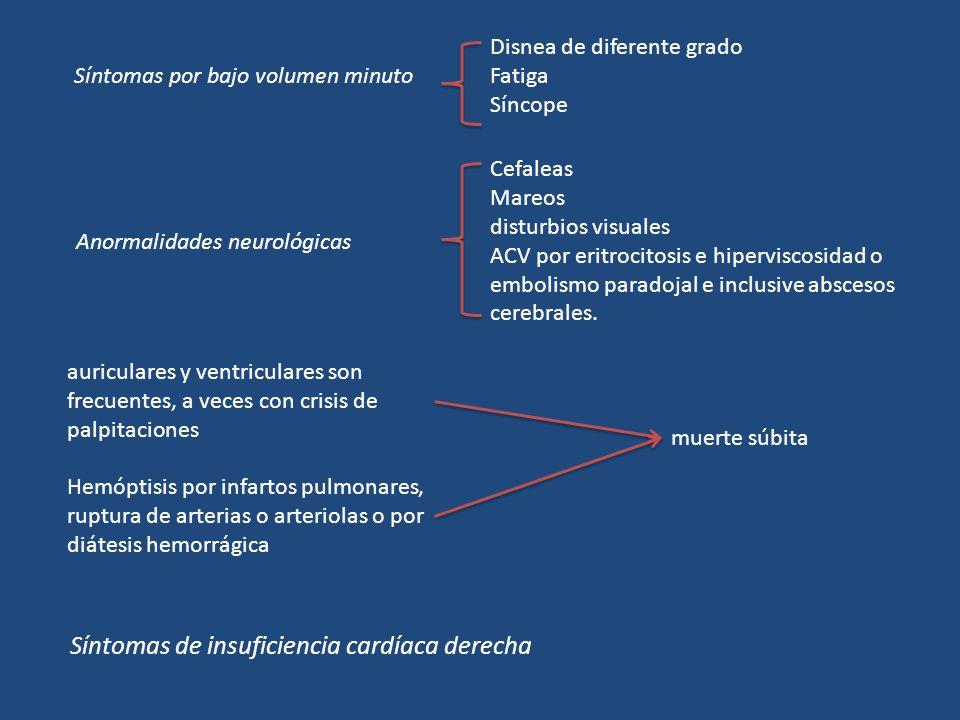 Síntomas de insuficiencia cardíaca derecha