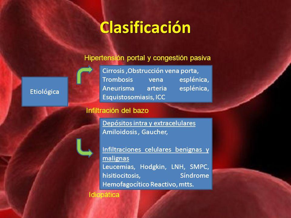Clasificación Hipertensión portal y congestión pasiva